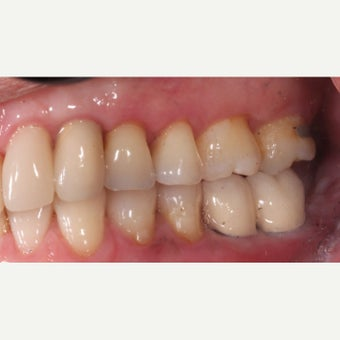 35-44 year old woman treated with Dental Implants after 2178356