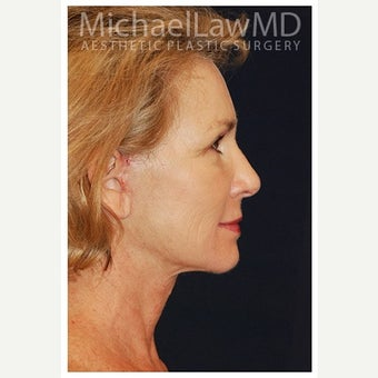 55-64 year old woman treated with Cheek Lift after 1550674