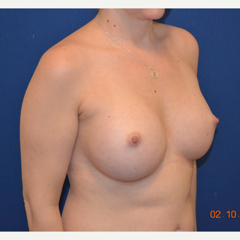 25-34 year old woman treated with Breast Augmentation after 3664099
