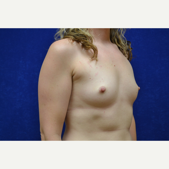 25-34 year old woman treated with Breast Augmentation before 3664099