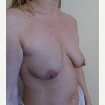 35-44 year old woman treated with Breast Lift before 3428304