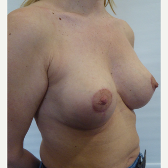 35-44 year old woman treated with Breast Lift after 3428304