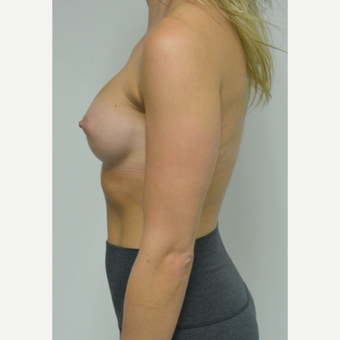 25-34 year old woman treated with Breast Implants who wants a natural look after 3644569