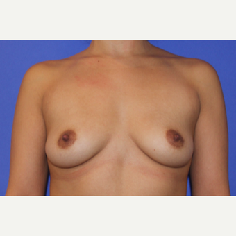 25-34 year old man treated with Breast Augmentation before 3201040