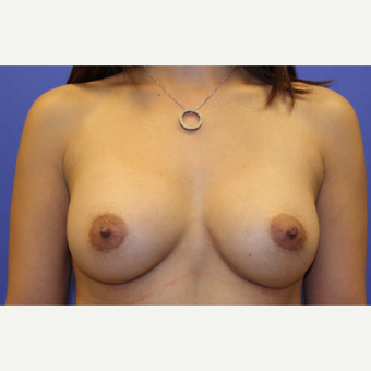 25-34 year old man treated with Breast Augmentation after 3201040