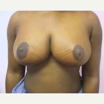 Breast Reduction after 2129909