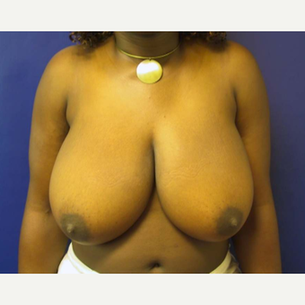Breast Reduction before 2129909