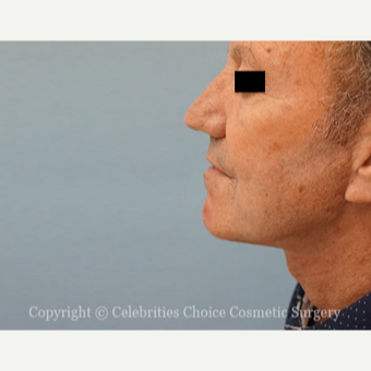 55-64 year old man treated with Neck Lift after 3445319