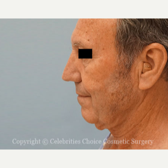 55-64 year old man treated with Neck Lift before 3445319