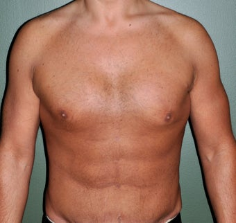 35 Year Old Male Who Desired A More Muscular Chest