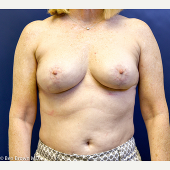 55-64 year old woman treated with Breast Implant Removal after 2698839