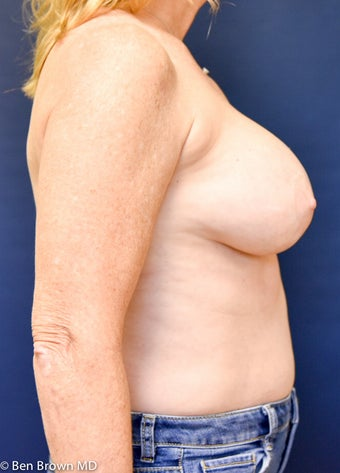 55-64 year old woman treated with Breast Implant Removal 2698839