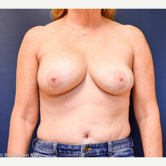 55-64 year old woman treated with Breast Implant Removal before 2698839