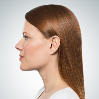 45-54 year old woman treated with Kybella after 3304016