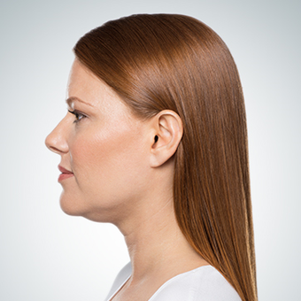 45-54 year old woman treated with Kybella before 3304016