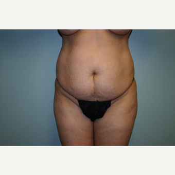 55-64 year old woman treated with Tummy Tuck before 3338759