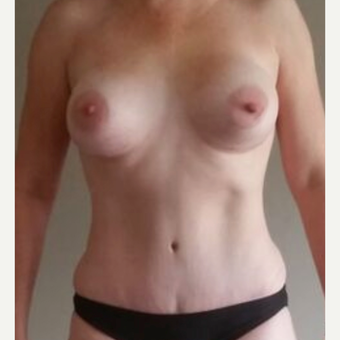 25-34 year old woman treated with Breast Augmentation after 3826466
