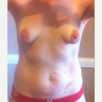25-34 year old woman treated with Breast Augmentation before 3826466