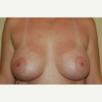 35-44 year old woman treated with Breast Implants after 3057144