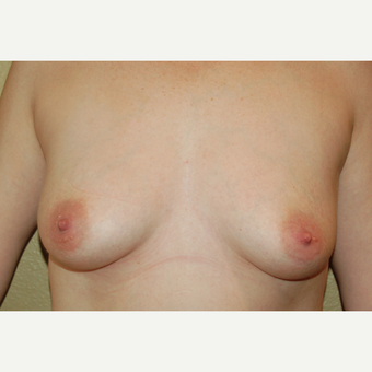 35-44 year old woman treated with Breast Implants before 3057144