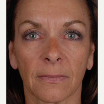 45-54 year old woman treated with Restylane before 3027585