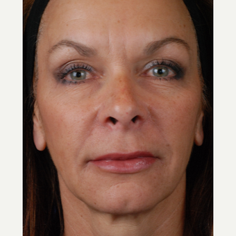 45-54 year old woman treated with Restylane after 3027585