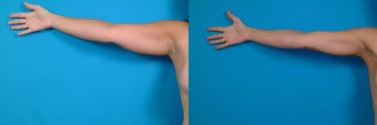 39-year-old woman treated with Liposuction. before 3287543