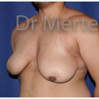 25-34 year old man treated with FTM Chest Masculinization Surgery before 3829004