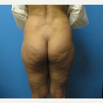 25-34 year old woman treated with Fat Transfer before 1596745