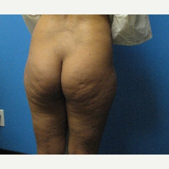 25-34 year old woman treated with Fat Transfer 1596745