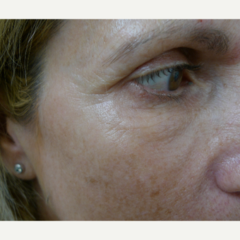 Juvederm for facial harmony after 2842417