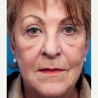 55-64 year old woman treated with Wrinkle Treatment before 2773039