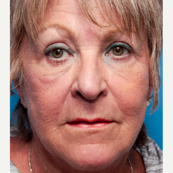 55-64 year old woman treated with Wrinkle Treatment after 2773039
