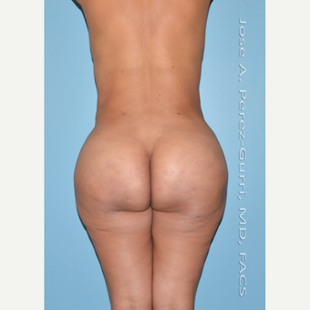 35-44 year old woman treated with Brazilian Butt Lift after 3305947