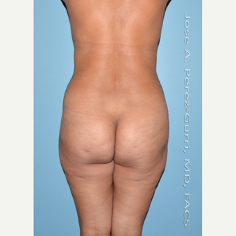 35-44 year old woman treated with Brazilian Butt Lift before 3305947