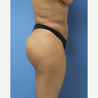 35-44 year old woman treated with Brazilian Butt Lift after 3696152