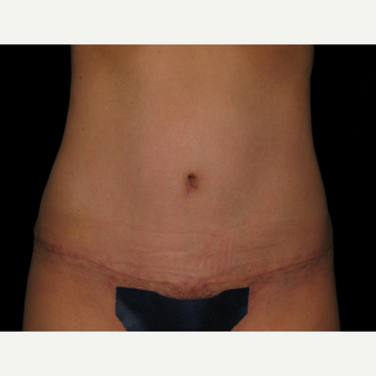 25-34 year old woman treated with Tummy Tuck 360 and SAFELipo after 2980046