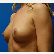 29 year old 460cc ultra high profile silicone breast implants before 3370944
