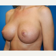 29 year old 460cc ultra high profile silicone breast implants after 3370944
