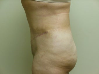 47 year old female desiring Tummy Tuck with Liposuction to Upper Abdomen and Flanks 1022172