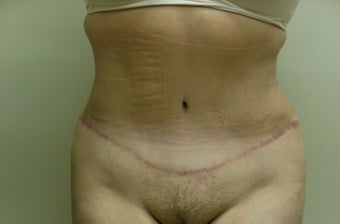 47 year old female desiring Tummy Tuck with Liposuction to Upper Abdomen and Flanks after 1022172