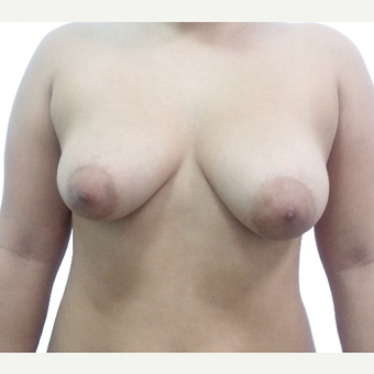 18-24 year old woman treated with Breast Reconstruction before 3376225