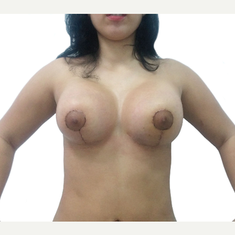 18-24 year old woman treated with Breast Reconstruction after 3376225