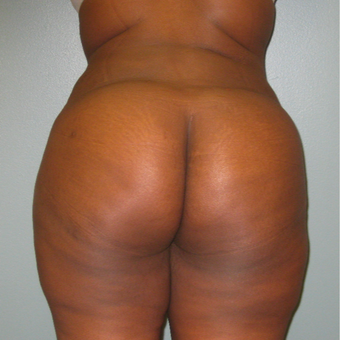 35-44 year old woman treated with Brazilian Butt Lift after 1866219