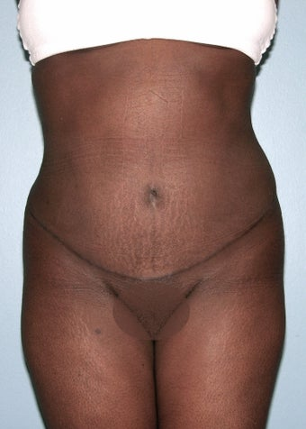 Abdominoplasty after 1291547