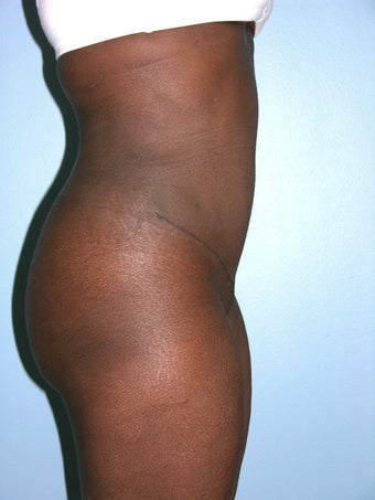 Abdominoplasty 1291547