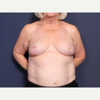 65-74 year old woman treated with Breast Reduction (view 1 of 2) after 3566213