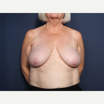 65-74 year old woman treated with Breast Reduction (view 1 of 2) before 3566213