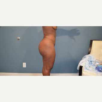 25-34 year old woman treated with Brazilian Butt Lift after 3611597