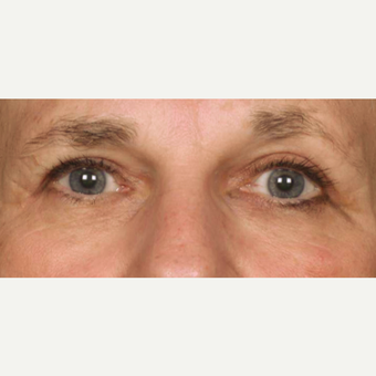 65-74 year old woman treated with Eyelid Surgery after 3286817